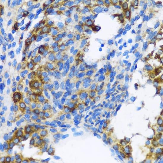 PTCH Antibody in Immunohistochemistry (IHC)