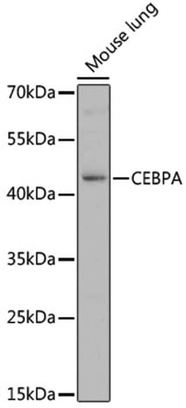C/EBP alpha Antibody in Western Blot (WB)