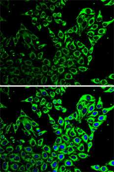 HSP60 Antibody in Immunocytochemistry (ICC)