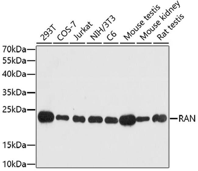 RAN Antibody in Immunofluorescence (IF)