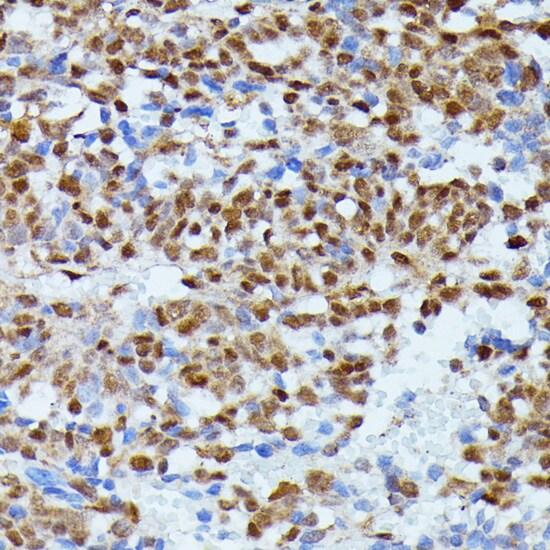 ID2 Antibody in Immunohistochemistry (IHC)