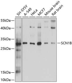 SCN1B Antibody in Western Blot (WB)