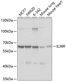 IL1RL2 Antibody in Western Blot (WB)