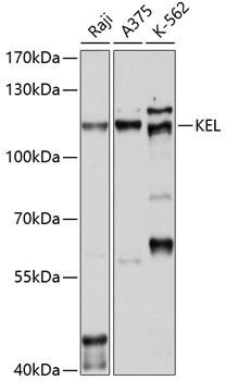 KELL Antibody in Western Blot (WB)