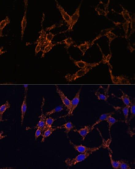 14-3-3 beta Antibody in Immunocytochemistry (ICC)