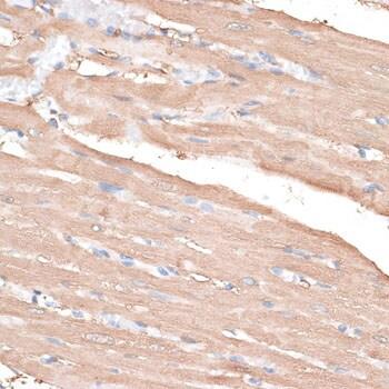 KIF14 Antibody in Immunohistochemistry (IHC)