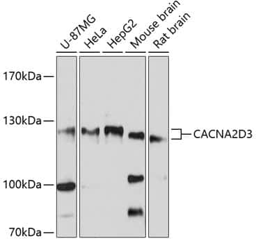 CACNA2D3 Antibody in Western Blot (WB)
