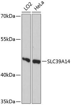 ZIP14 Antibody in Western Blot (WB)