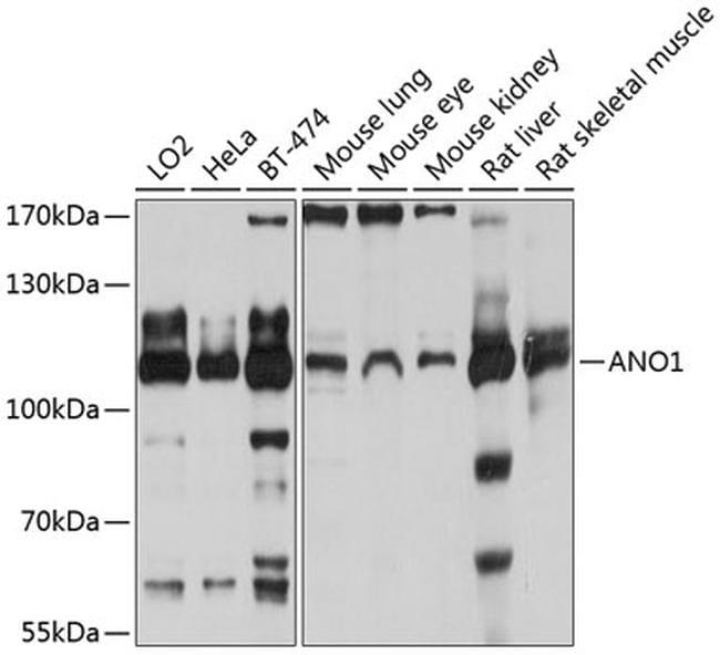 DOG-1 Antibody in Western Blot (WB)