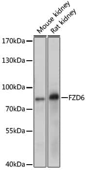 FZD6 Antibody in Western Blot (WB)