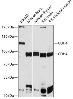 CDH4 Antibody in Western Blot (WB)