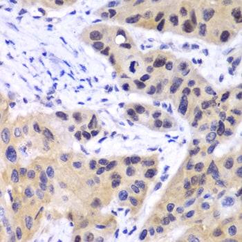 IRF3 Antibody in Immunohistochemistry (IHC)