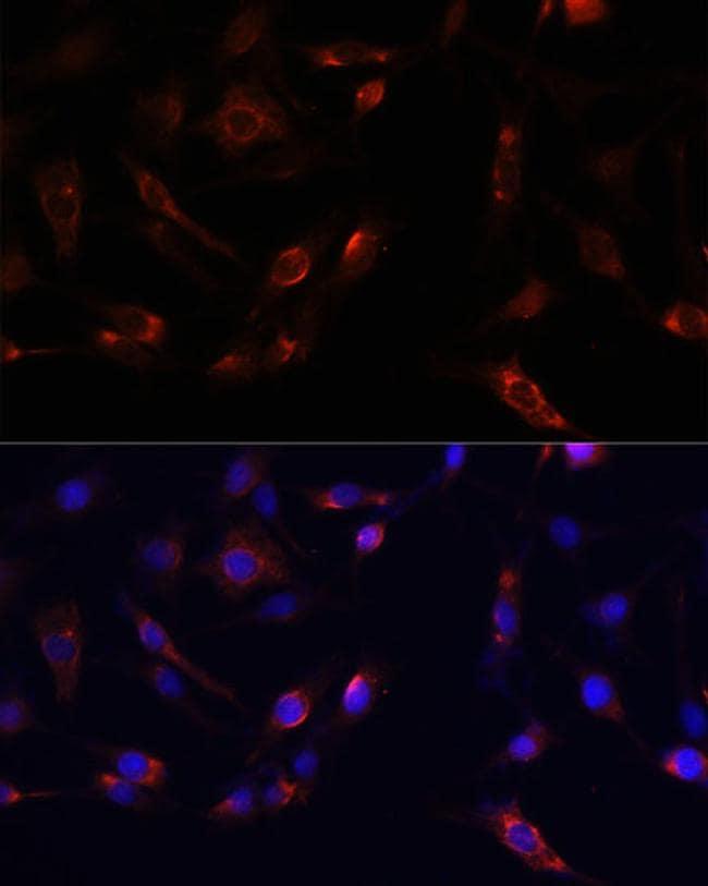 FAK Antibody in Immunocytochemistry (ICC)