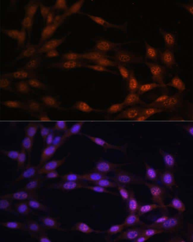 c-Jun Antibody in Immunofluorescence (IF)