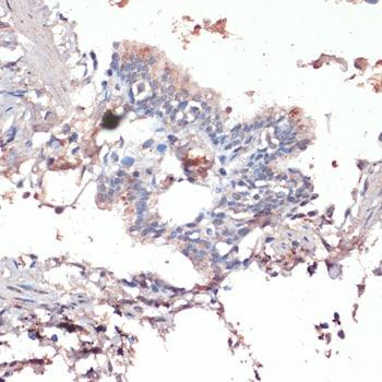c-Jun Antibody in Immunohistochemistry (IHC)