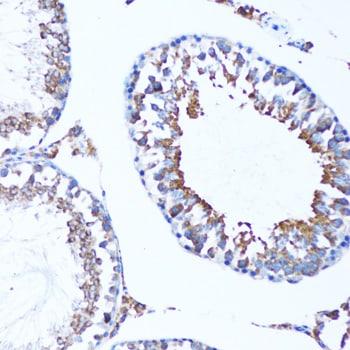 LC3A Antibody in Immunohistochemistry (IHC)