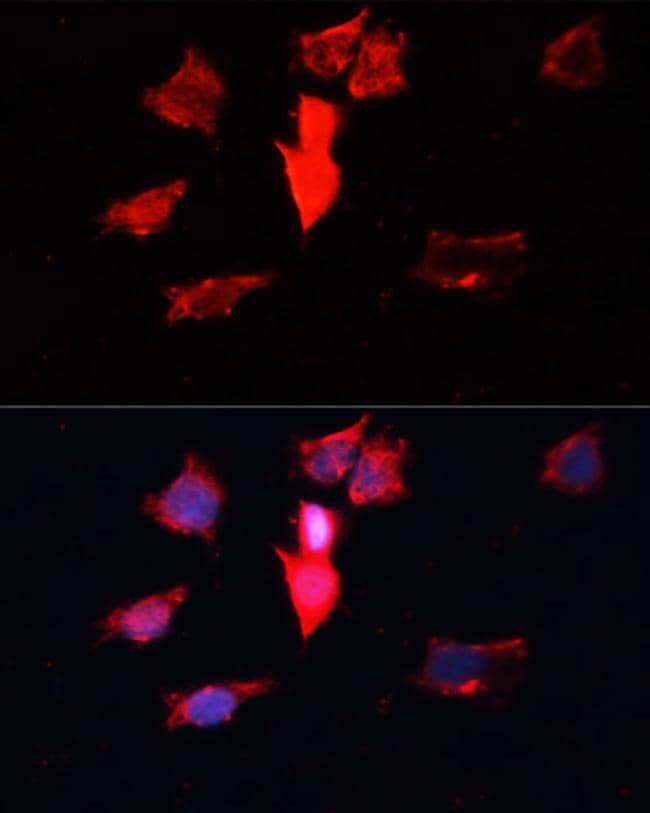 Calmodulin 3 Antibody in Immunofluorescence (IF)