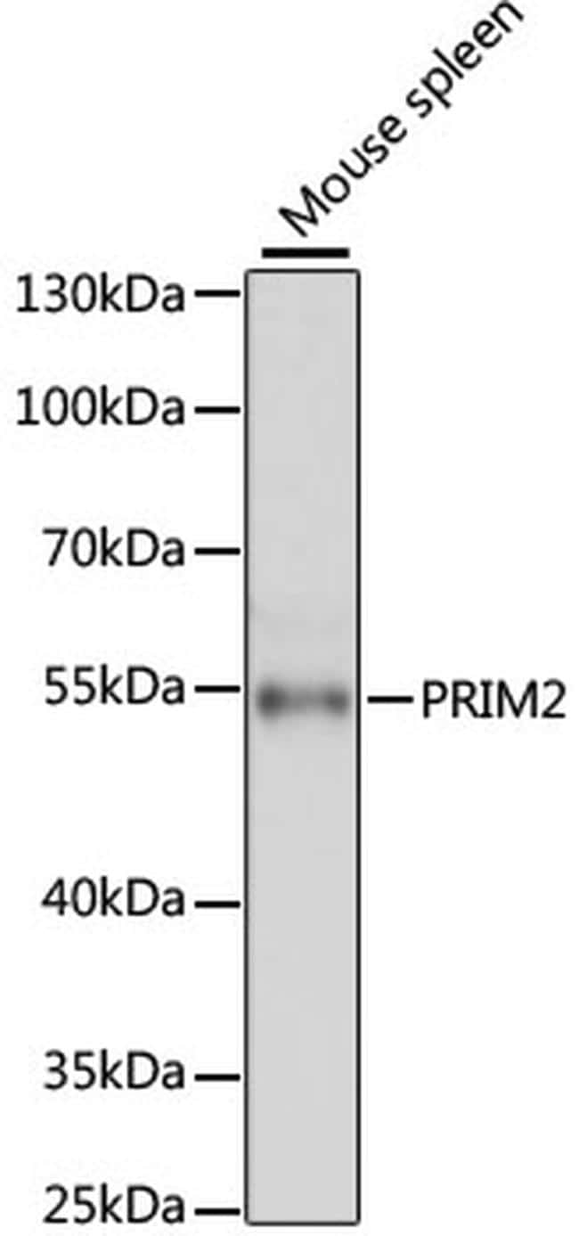PRIM2 Antibody in Western Blot (WB)
