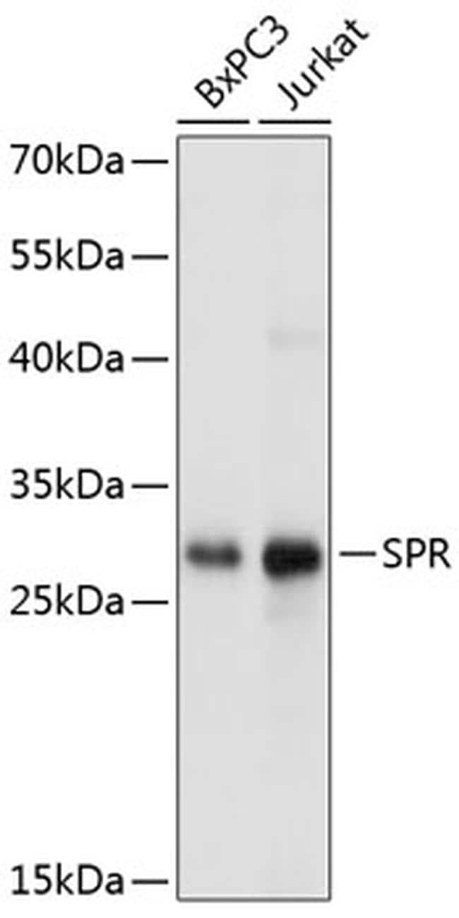 SPR Antibody in Western Blot (WB)
