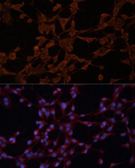 P-Glycoprotein Antibody in Immunocytochemistry (ICC)