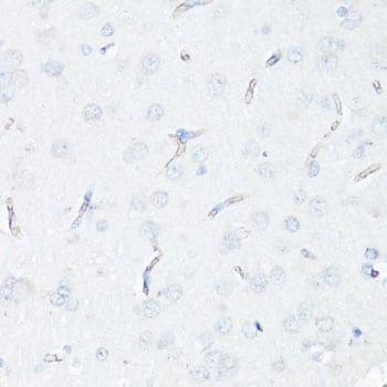 P-Glycoprotein Antibody in Immunohistochemistry (IHC)