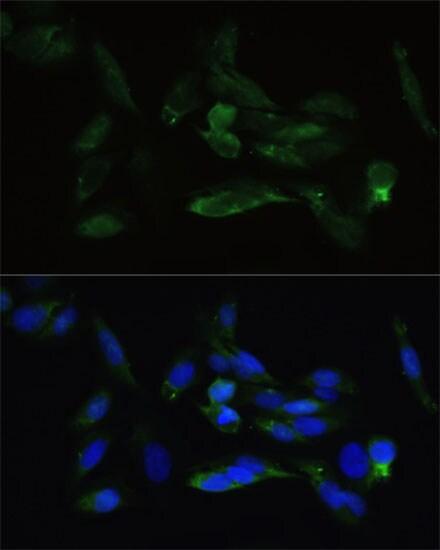 TGFBR2 Antibody in Immunocytochemistry (ICC)