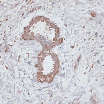 TGFBR2 Antibody in Immunohistochemistry (IHC)