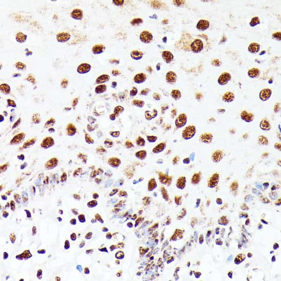 PML Antibody in Immunohistochemistry (IHC)