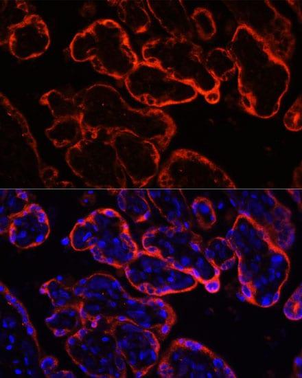 Klotho Antibody in Immunohistochemistry (IHC)