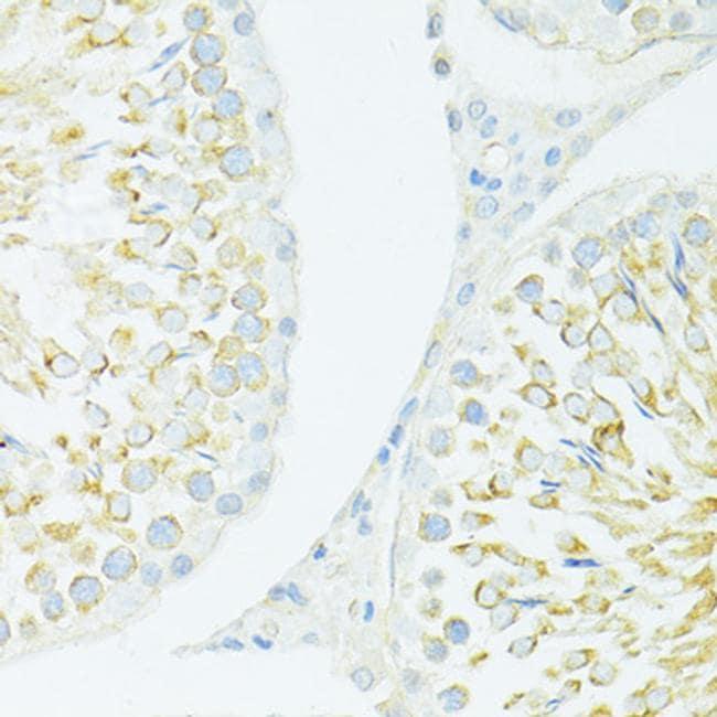 MYH10 Antibody in Immunohistochemistry (Paraffin) (IHC (P))