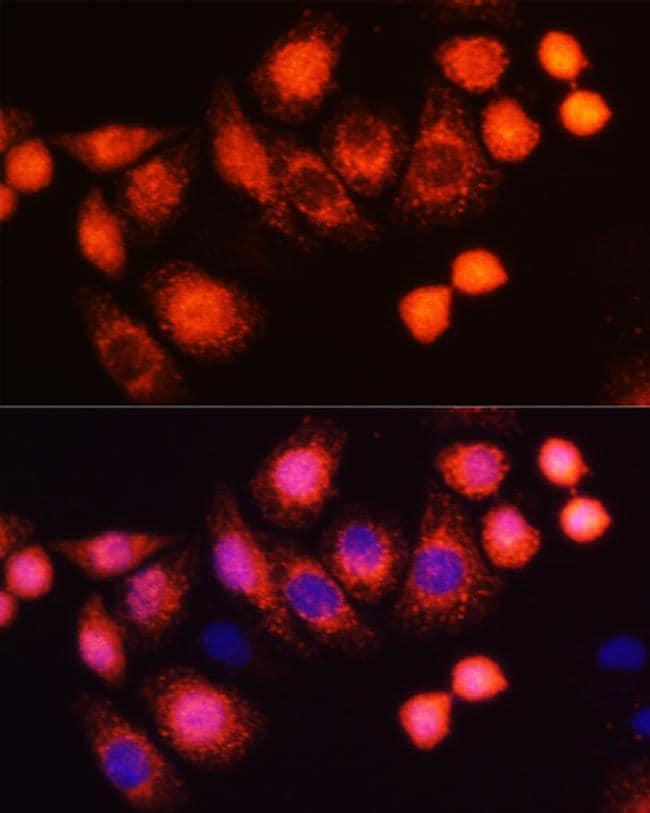 H-Ras Antibody in Immunocytochemistry (ICC)