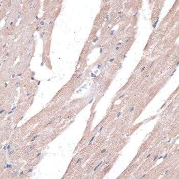 PPT2 Antibody in Immunohistochemistry (IHC)