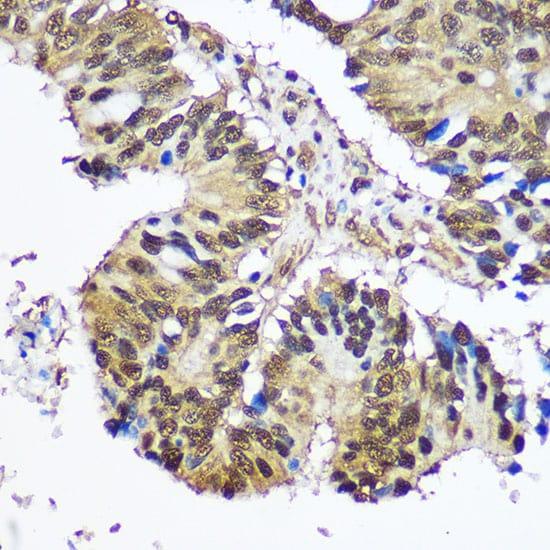 UBE1 Antibody in Immunohistochemistry (IHC)