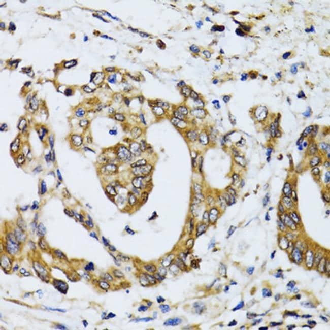 Ribophorin I Antibody in Immunohistochemistry (IHC)