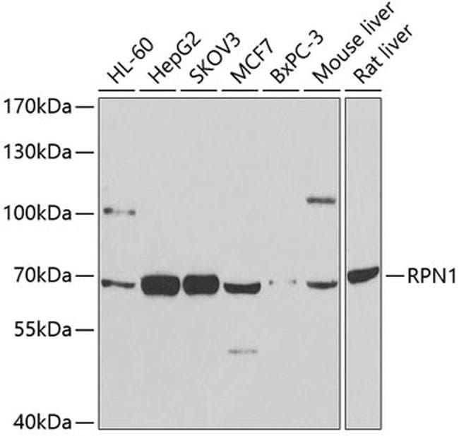 Ribophorin I Antibody in Western Blot (WB)