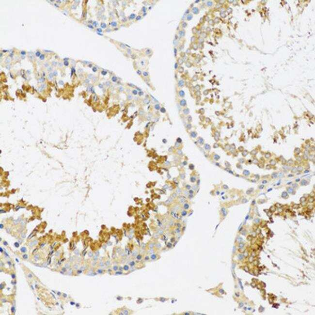 SRPK1 Antibody in Immunohistochemistry (Paraffin) (IHC (P))