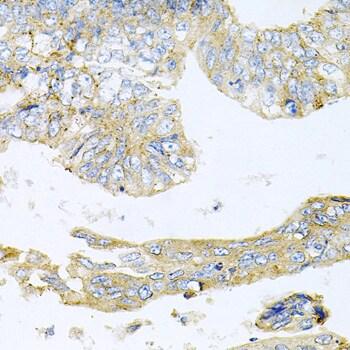 HDAC3 Antibody in Immunohistochemistry (IHC)