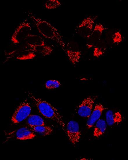 UCRC Antibody in Immunocytochemistry (ICC)