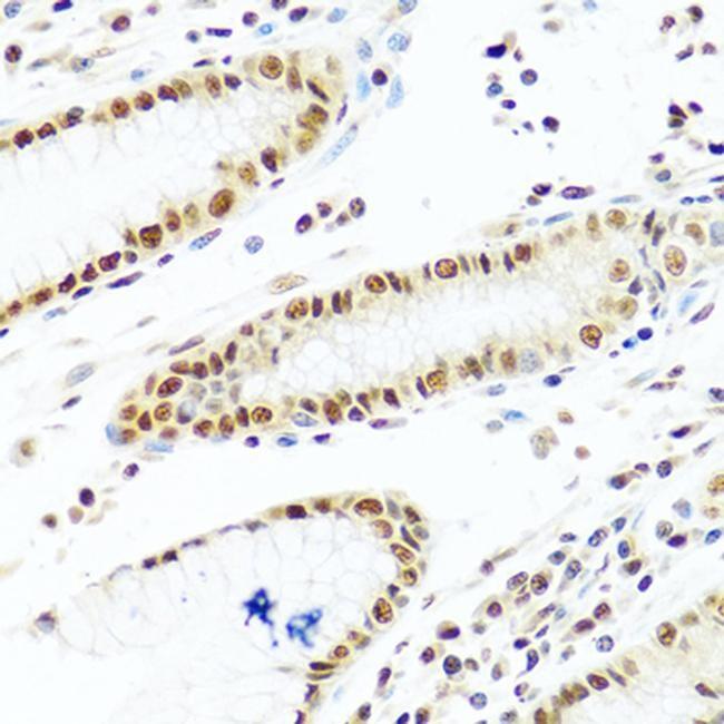 PRP19 Antibody in Immunohistochemistry (Paraffin) (IHC (P))