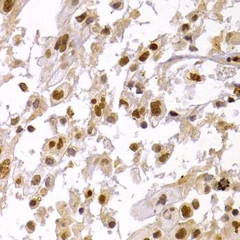 HP1 alpha Antibody in Immunohistochemistry (IHC)