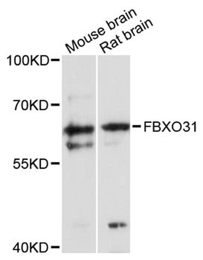 FBXO31 Antibody in Western Blot (WB)
