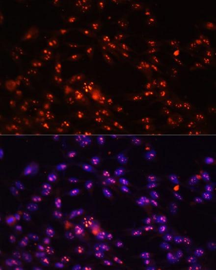 DKC1 Antibody in Immunocytochemistry (ICC)