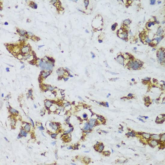 ECH1 Antibody in Immunohistochemistry (IHC)