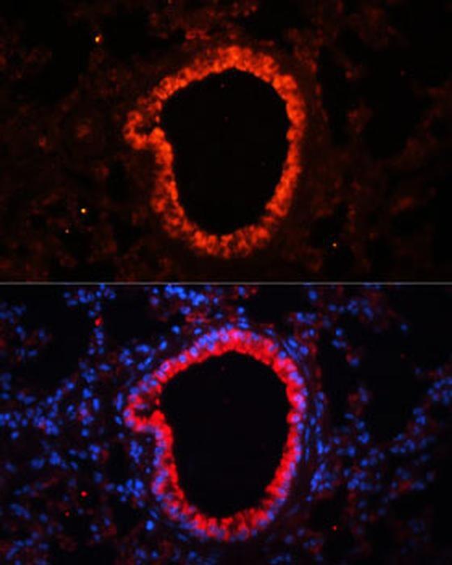NLRC4 Antibody in Immunofluorescence (IF)