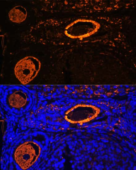 ZP3 Antibody in Immunohistochemistry (IHC)