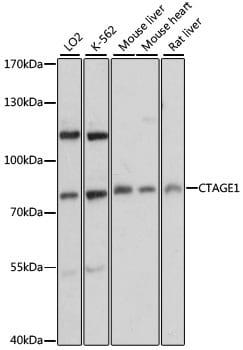 CTAGE1 Antibody in Western Blot (WB)