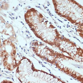 CXCL12 Antibody in Immunohistochemistry (IHC)