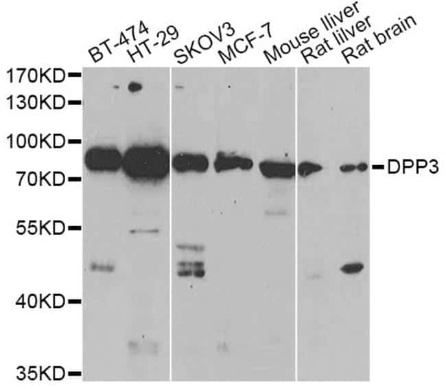 DPP3 Antibody in Western Blot (WB)