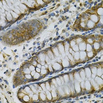 Adenylate Kinase 1 Antibody in Immunohistochemistry (IHC)