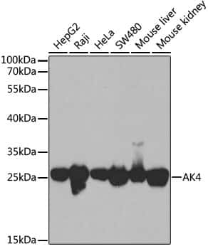 Adenylate Kinase 4 Antibody in Western Blot (WB)